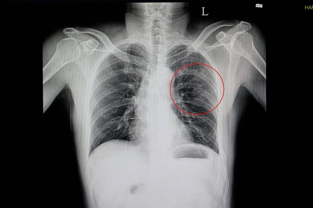 chest-x-ray-rib-fractures-blunt-chest-wall-injuried-patient